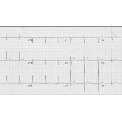 EKGs Simplified