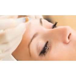 $481 for One Syringe of Bellafill at Elite Doc Health & Beauty ($1,200 Value)