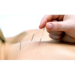 Two Acupuncture Treatments at Complementary Health Care (Up to 76% Off)