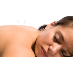 $67 for $150 Worth of Acupuncture - Acupuncture and Herbal Medicine