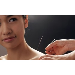 $49 for $100 Worth of Acupuncture - NY YES Acupuncture PC