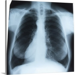 Large Solid-Faced Canvas Print Wall Art Print 20 x 20 entitled Chest x-ray