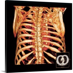 Large Gallery-Wrapped Canvas Wall Art Print 20 x 20 entitled Rib cage and heart, 3D CT scan